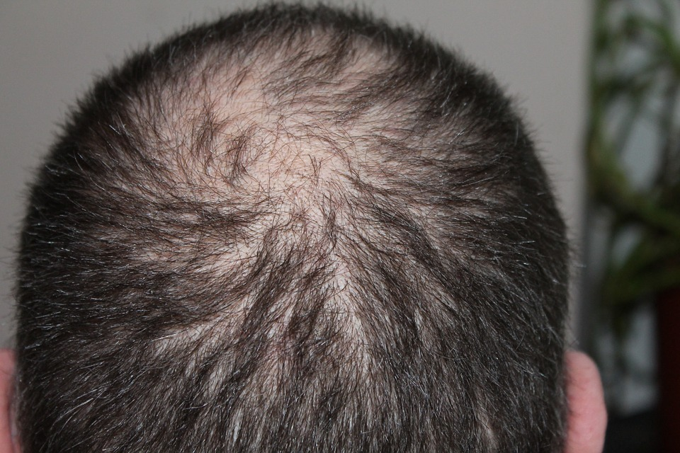 Minoxidil – Who can use it and How it works