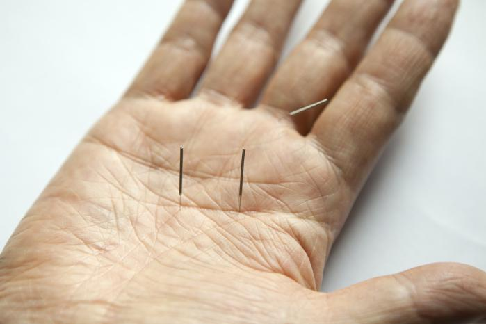 Acupuncture: Effective Treatment for Digestive Problems