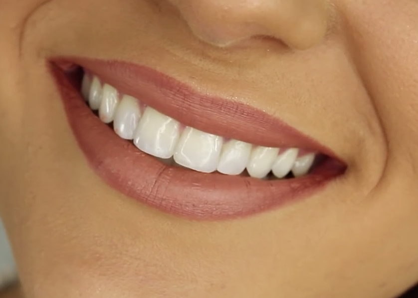 Revolution in teeth correction: straight teeth without wearing the brace