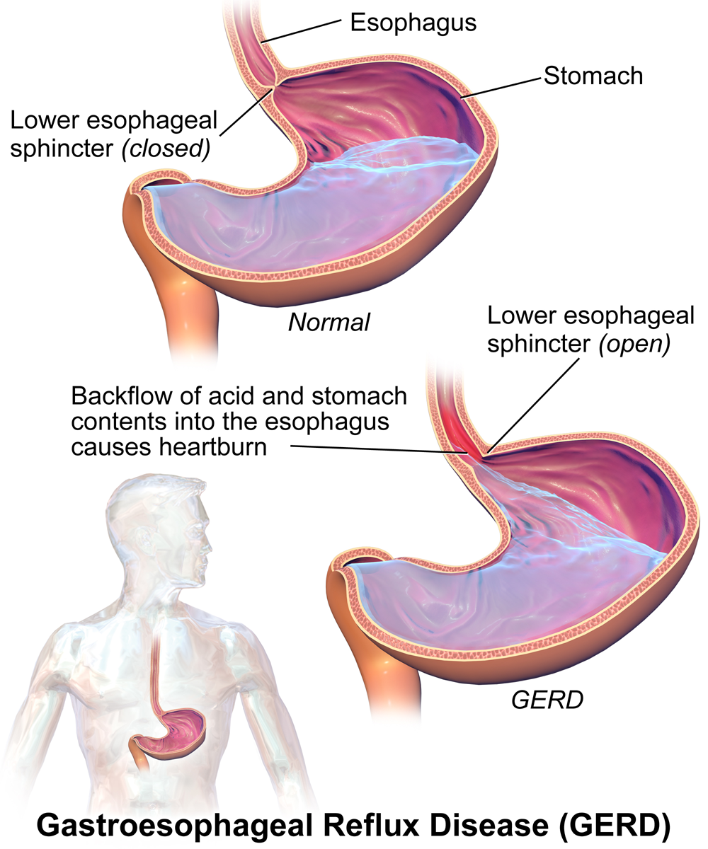 Acid Reflux – What should one do
