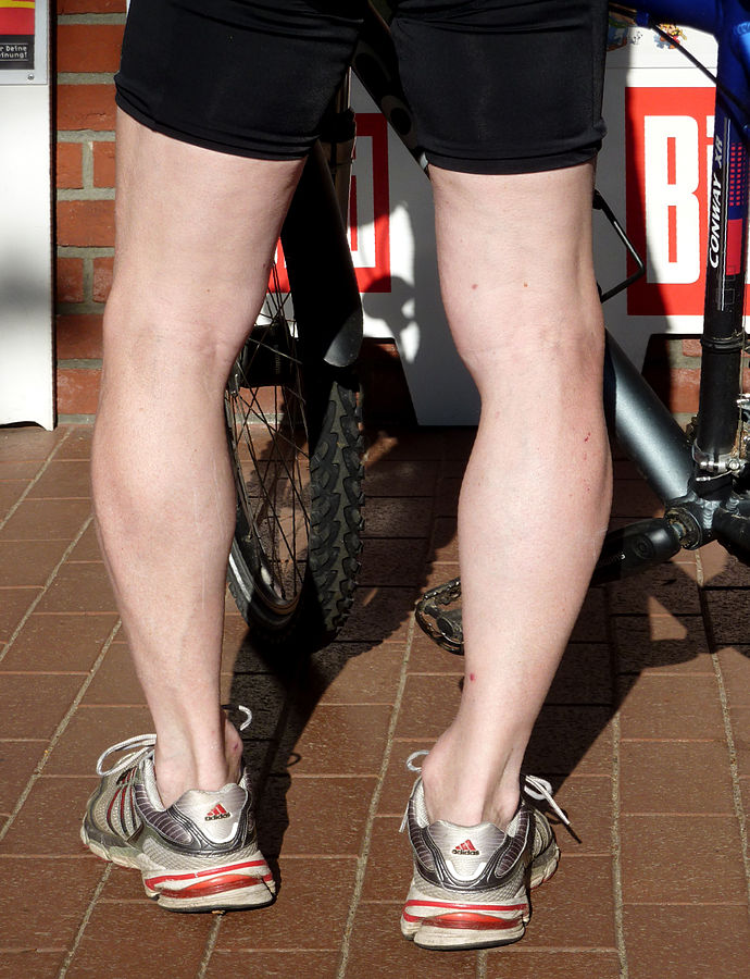 Bow Legs – Symptoms, Causes and Treatment Options