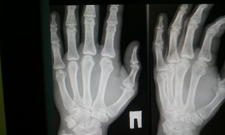 Rising popularity of Digital X ray