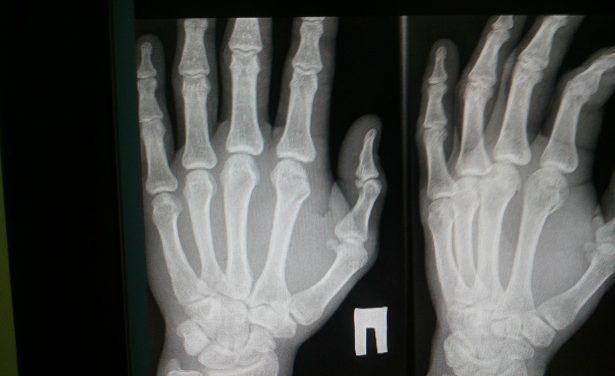 Rising popularity of Digital X ray