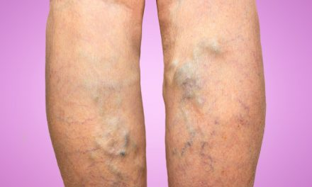 Top Guide of Varicose Veins