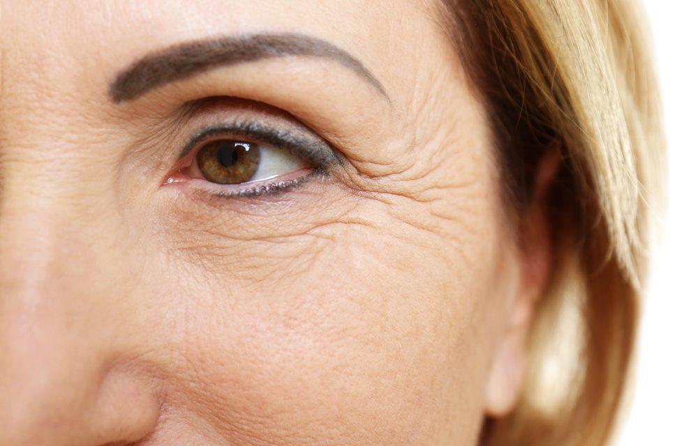 Principle of operation of dermal fillers «Radiesse» and «Surgiderm»