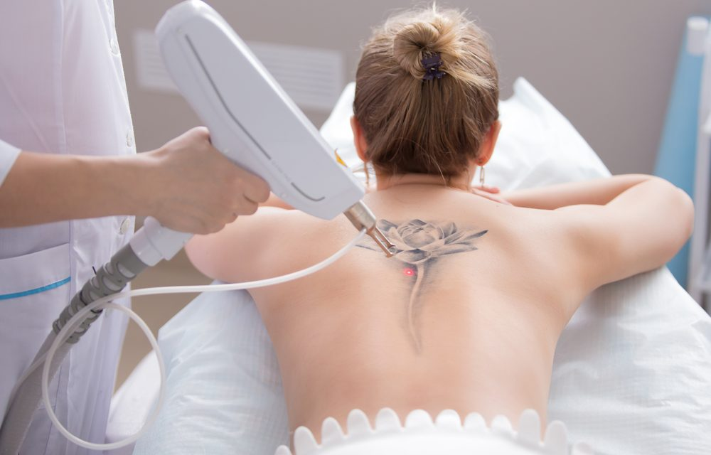 7 things you need to know for tattoo removal by a laser machine