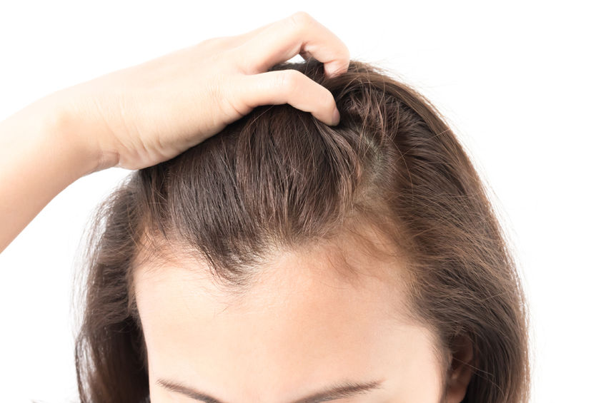 Hairloss and how to prevent it