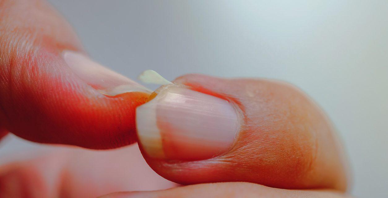 3 Signs You Need Nail Repair
