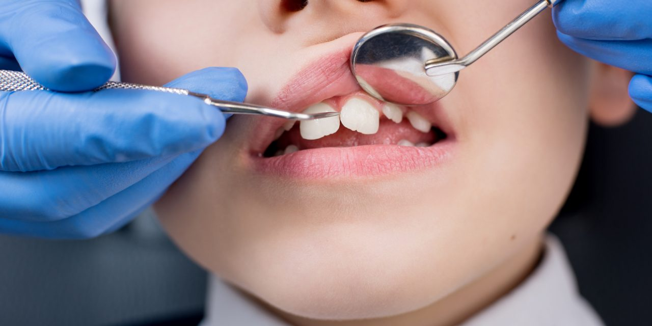 How Long Do Cavities Take to Form?